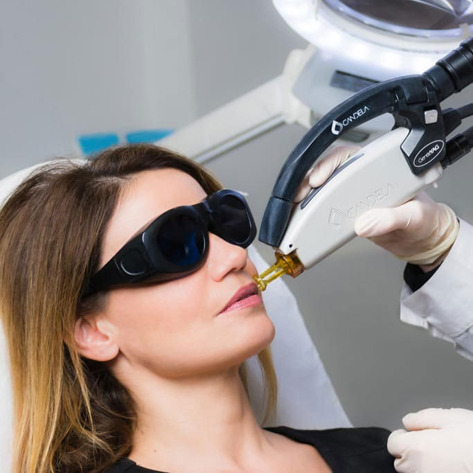 Laser Αποτρίχωση με Candela Αλεξανδρίτη για Γυναίκες