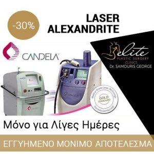 Laser Αποτρίχωση με Alexandrite Αθήνα