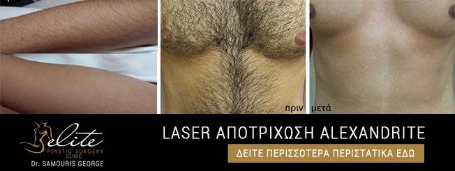 Laser Αποτρίχωση Αλεξανδρίτη
