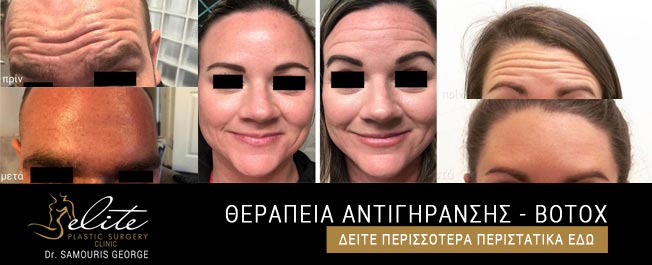 neyrotoksini-therapeia-antigiransis