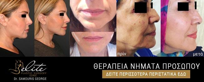 therapeia-nimata-prosopou