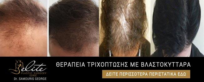 therapeia-trixoptosis-me-blastokittara